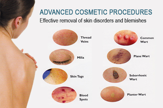 Advanced Cosmetic Procedures ‹� Body Systems Salon Amp Spa L